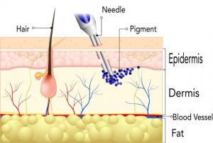 Illustration of Procedure