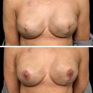 3D Nipple/Areola Tattoo
