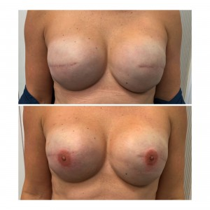 3D Nipple/Areola Tattoo-Bilateral Mastectomy Tattoo